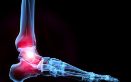 Chronic Ankle Pain in an 11 Year Old Dancer