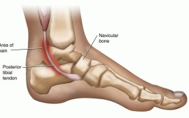 Pain At The Back Of The Ankle &#8211; Posterior Impingement?