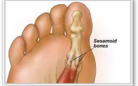 Pain Under The Ball Of The Foot &#8211; Sessamoiditis?