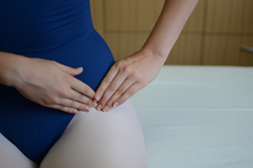Chronic Hip and Back Pain in Hypermobile Dancers