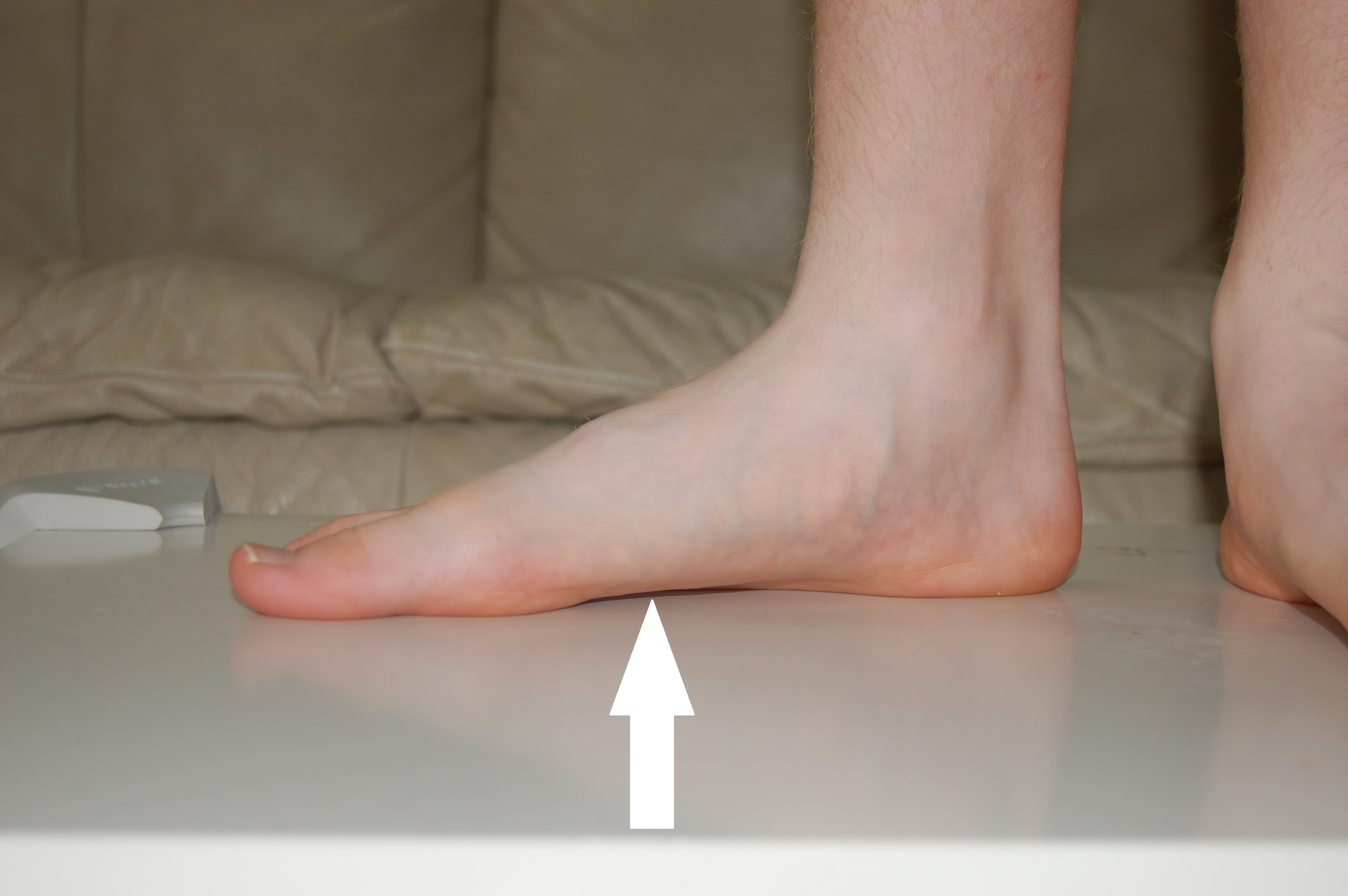 What Type Of Shoes Are Best For Flat Feet