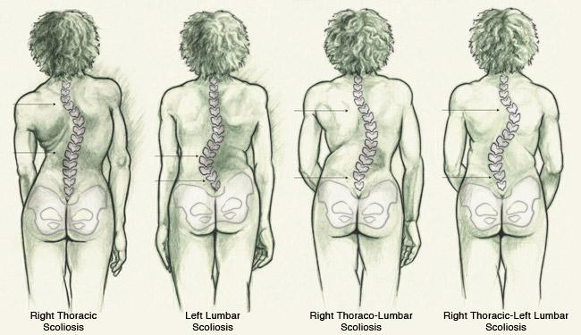 hip flexor ache can not walk