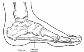 Foot Surgery in Dancers – Removal of the Plantar Fascia?!