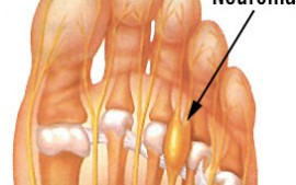 What is A Mortons Neuroma?