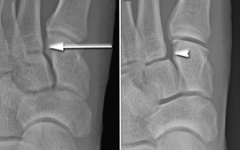 Lisfranc Injury – To have surgery or not?