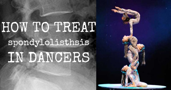 How to Treat Spondylolisthesis in Dancers