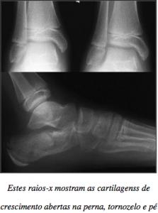 Portuguese - Should I Get an Xray before starting pointe - Article Image
